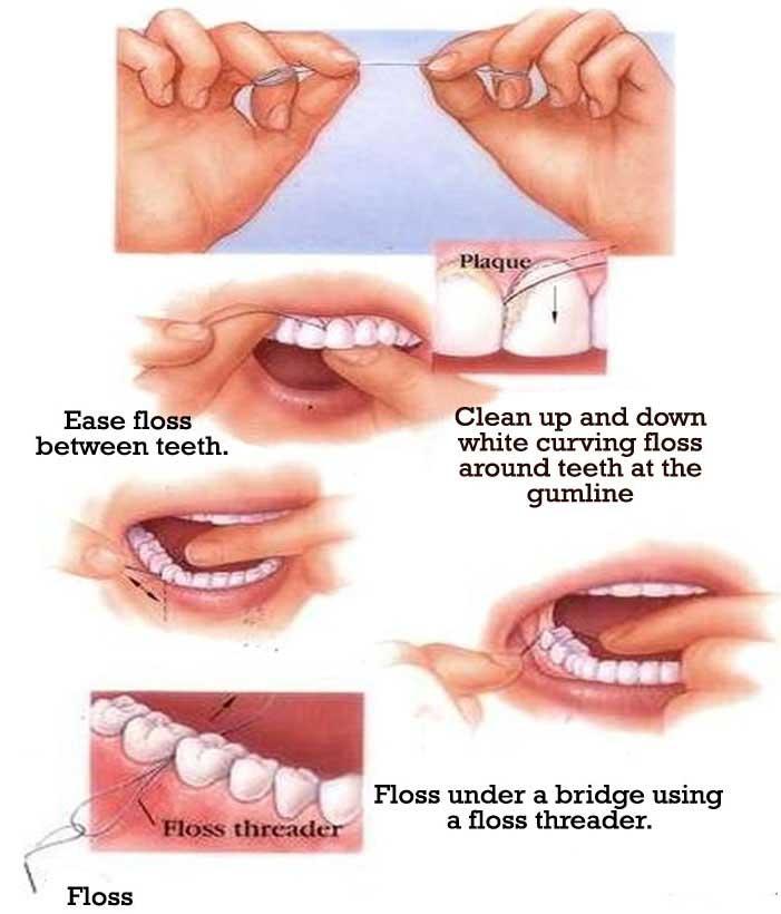 using-dental